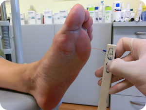 El hongo sobre las uñas en los pies puesto en marcha como curar